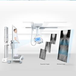 数码X光检查